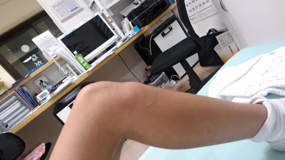 子供の膝の痛みと言えば・・・
